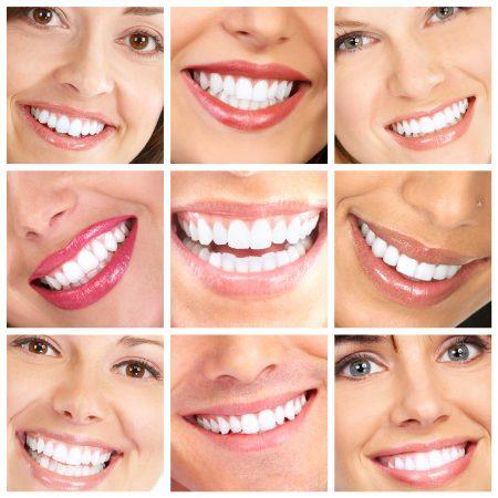הלבנת שיניים בתאי שיזוף